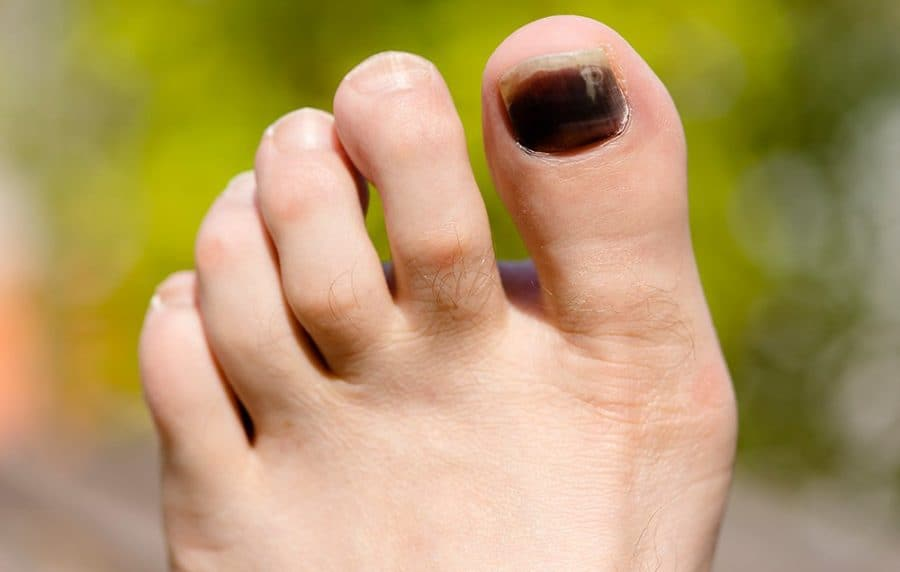 Black Toenail Fungus-Know the Causes, Treatment and Home Remedies