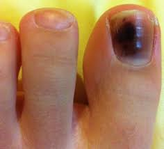 Black toenail cancer or melanoma