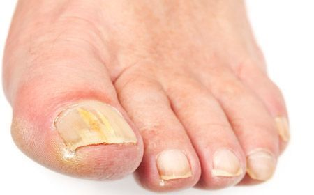 Yellow Toenails-Know Details of it and Get Some Remedies!