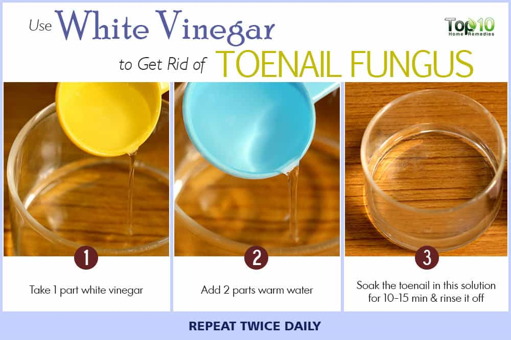 how-to-get-rid-of-toenail-fungus-white-vinegar-water